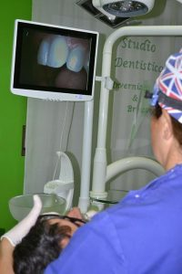 telecamera intraorale - Studio dentistico Invernizzi Brazzelli