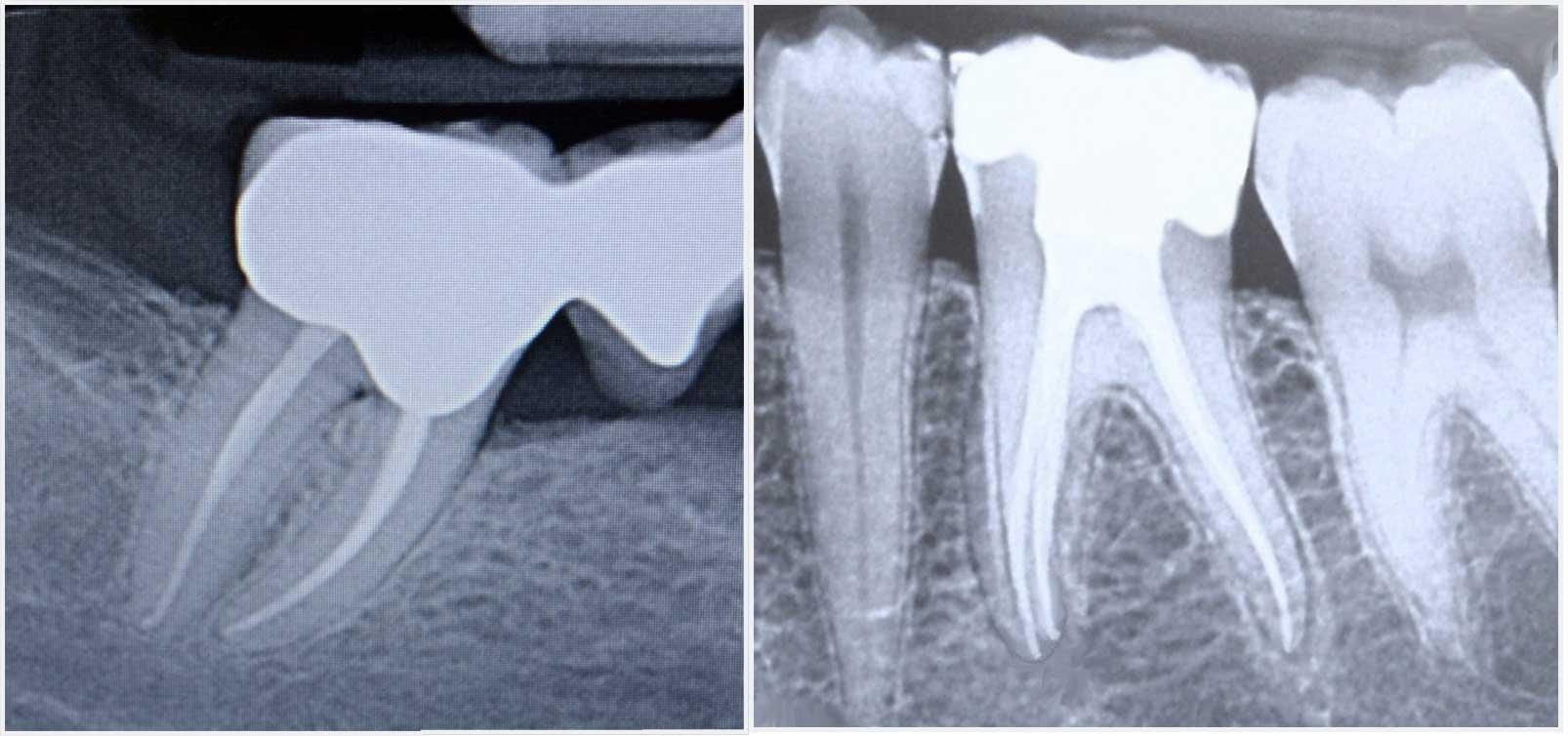 Endodonzia - Studio Dentistico Invernizzi Brazzelli